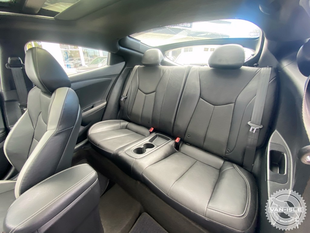 2017-Hyundai-Veloster
